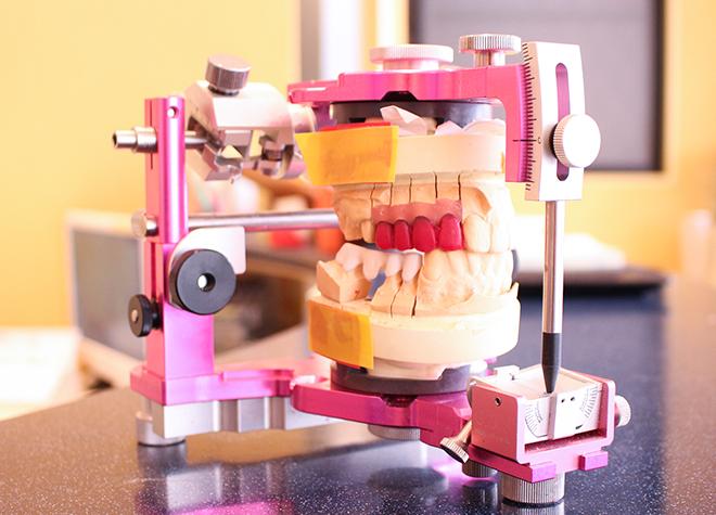 インプラントでしっかり周囲の歯も支えて、いつまでも健康な歯を保つようにしましょう