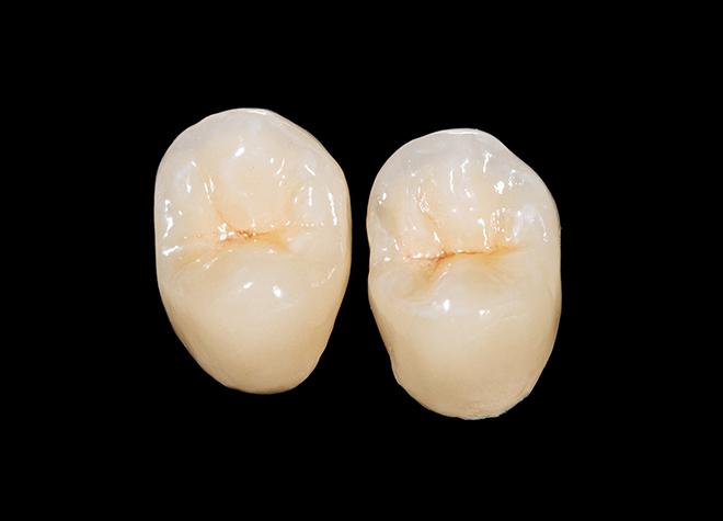あい歯科クリニック_特徴2