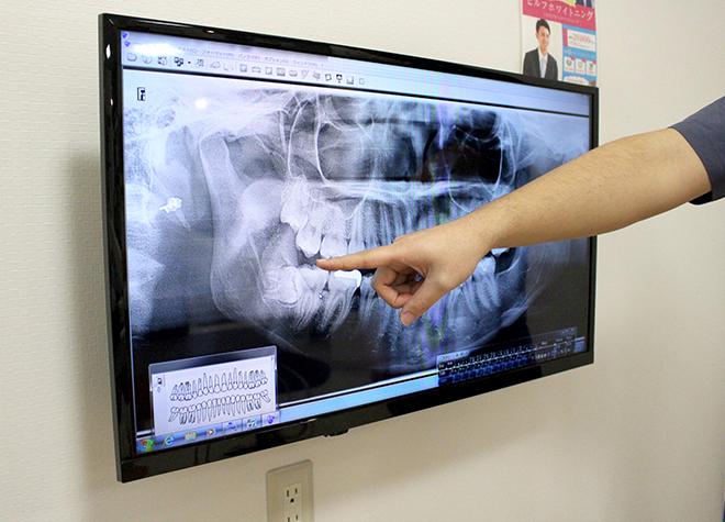 日本口腔科学会認定の口腔外科専門医が治療後のことも考慮した抜歯を行います。