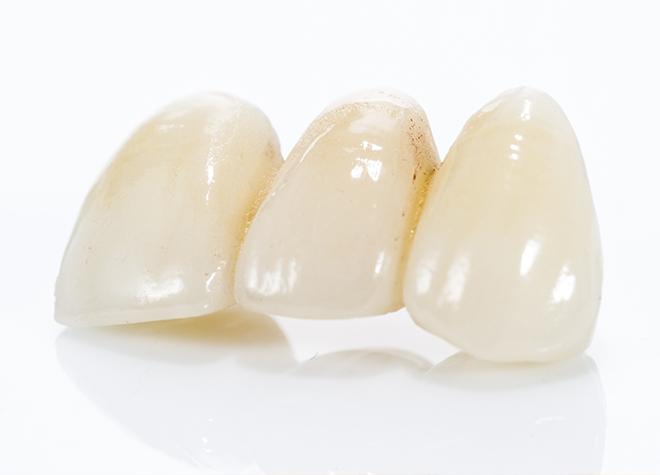 セラミック治療やホワイトニングで白くて健康な歯を手に入れましょう