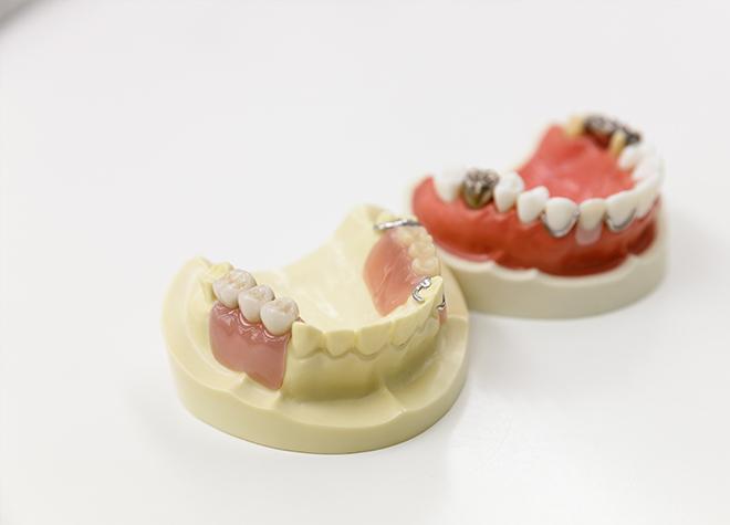 インプラント手術が不安な方には、入れ歯治療で対応しています。
