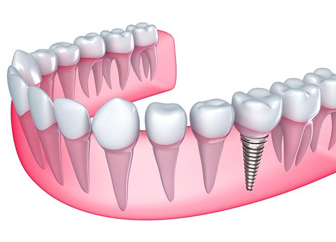 隣の歯を守るために必要な場合におすすめします