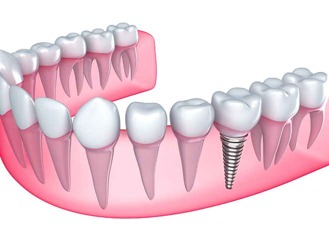 歯を失ってしまってお困りの方へ。是非一度インプラント治療のご相談にいらしてください
