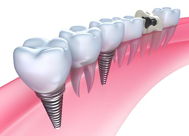あい歯科クリニック上溝_特徴1