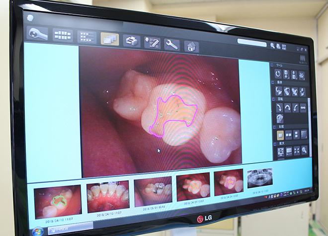 戸部歯科医院_特徴3