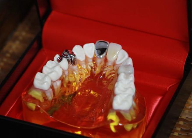 見た目の良さ、噛み心地の良さなど、ニーズに応じて様々な入れ歯をお作りします