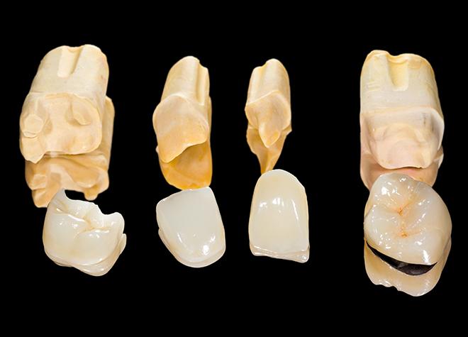 美しい歯のために、白さだけではなく調和を考慮した診療を行っております。