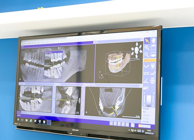 歯科技工所と連携をとり、患者さまのお口に合った治療を目指しています
