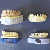 一人ひとりに合う歯の保存修復の提案