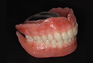 より噛みやすく、見た目も優れた入れ歯を取り扱っています。