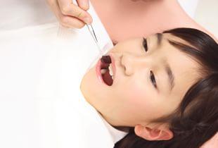 予防歯科はお子様から始まっています