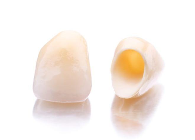 精密で、歯ぐきとの親和性があるセラミックでの「白い歯」を提供しております。