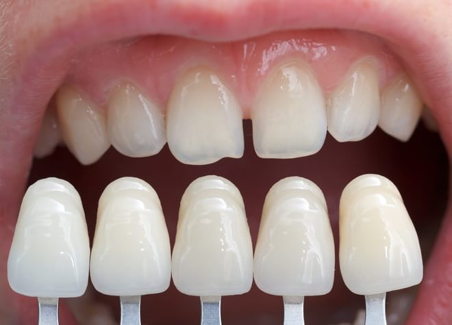 患者さまそれぞれの、その方なりの自然な白さを大事にしています。