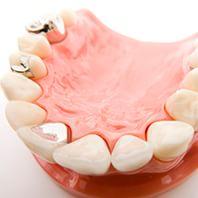天然歯と調和する