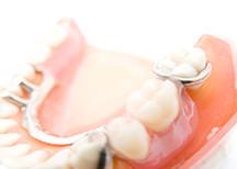 『入れ歯』新たな入れ歯と一緒にこれから快適な生活を
