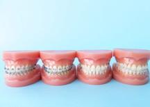 お子様から大人まで対応できる矯正歯科