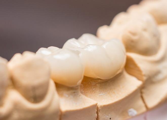白い歯と美しい口元を、患者様のライフスタイルに合わせて手に入れることができます。