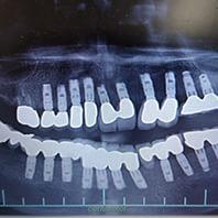 インプラント<br />第二の永久歯