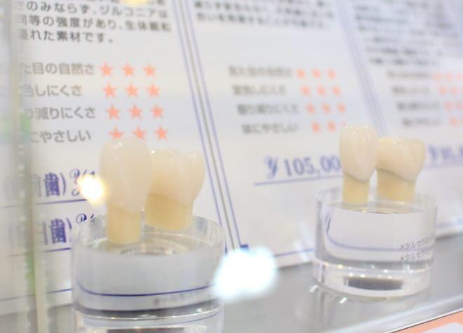 美容診療のメリットは、美しいだけでなくメタルフリー、高耐久性など様々です