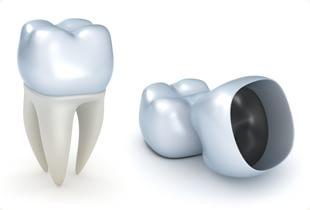 さくら歯科針中野院|特徴 4