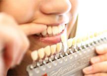 審美歯科をご紹介