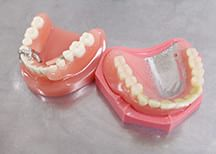 歯を失った際の治療