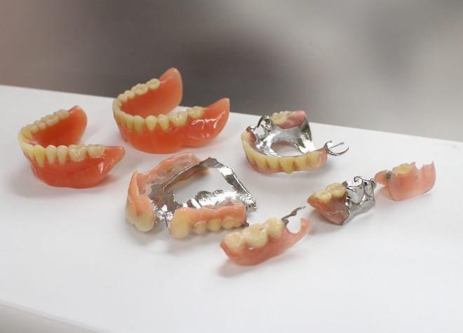 保険診療の入れ歯は細かな調整を行い、できるだけ違和感が少なく、患者様に合うものを作成します