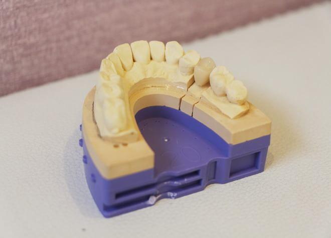 きれいな白い歯を保険の範囲内で