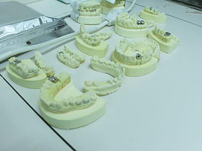 院内在駐の歯科技工士の存在で、その場でセカンドオピニオンを確認
