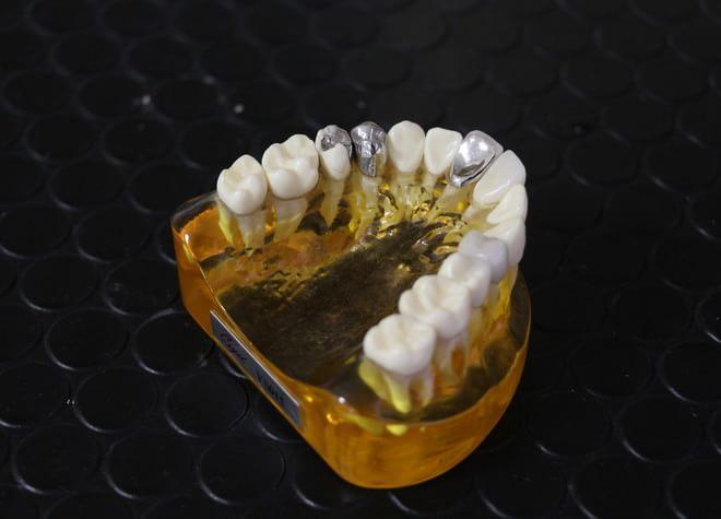神経を残し、削る量を抑えた治療をして、患者さまの歯を守ります