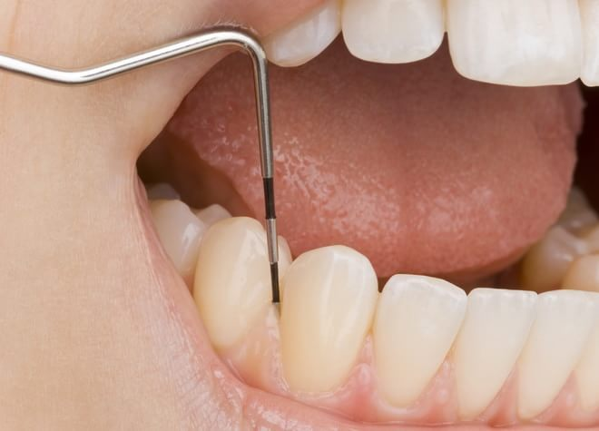 定期検診に通って、将来もご自身の歯で食事を楽しみませんか?