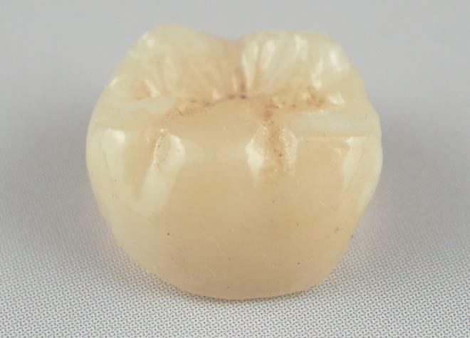 歯を削る量が少なく、天然の歯との見分けがつきにくいセラミッククラウンをおすすめしています