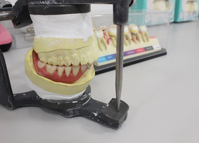 ミント歯科5