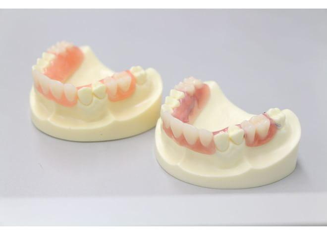 Q.入れ歯を作り直す際に大切にしていることを教えてください。