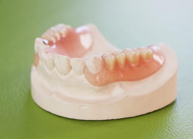 Q.入れ歯の治療で重要視していることはなんですか?