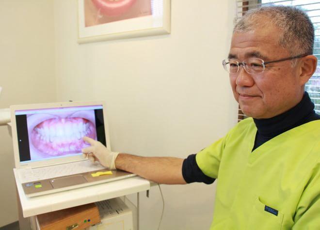 Q.入れ歯の作製で心がけていることは何ですか?