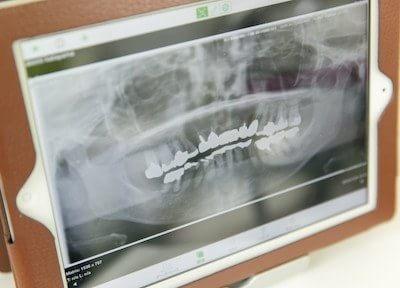 椋本歯科医院7